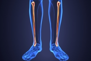 Extracorporeal Shock Wave Therapy for Tibial Nonunion